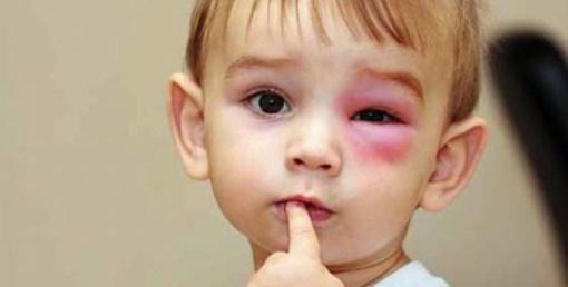 Obat Penyakit Ginjal Bocor Pada Anak dan Dewasa