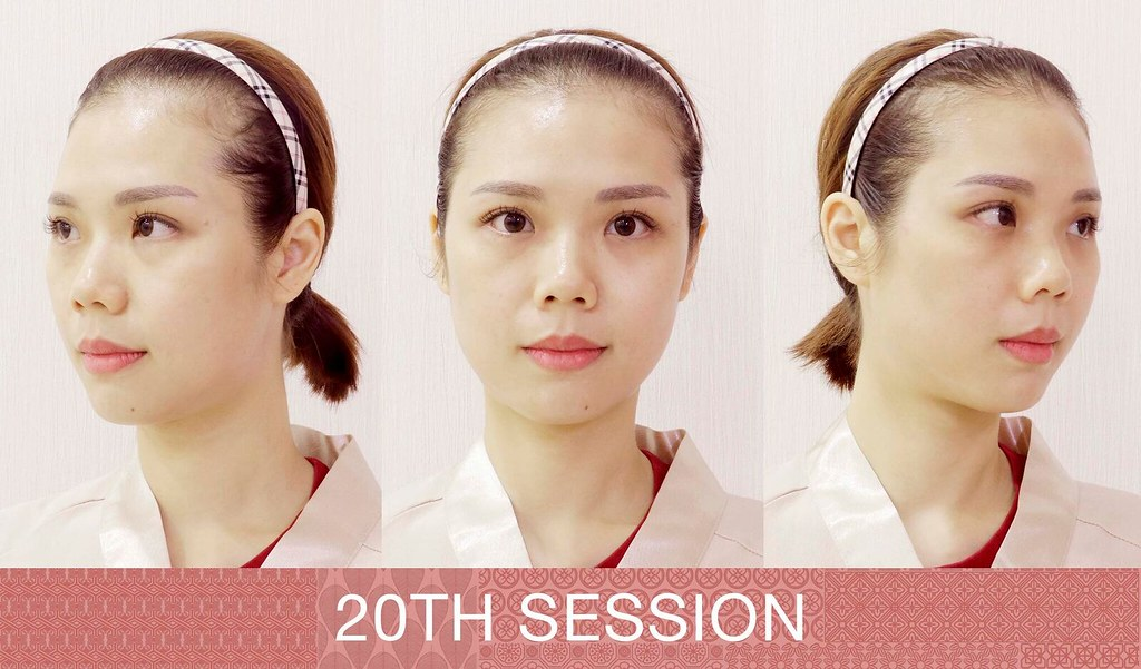Netty Lie - 20th Session