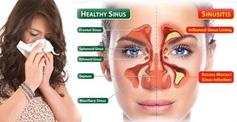Obat Generik Untuk Sinusitis