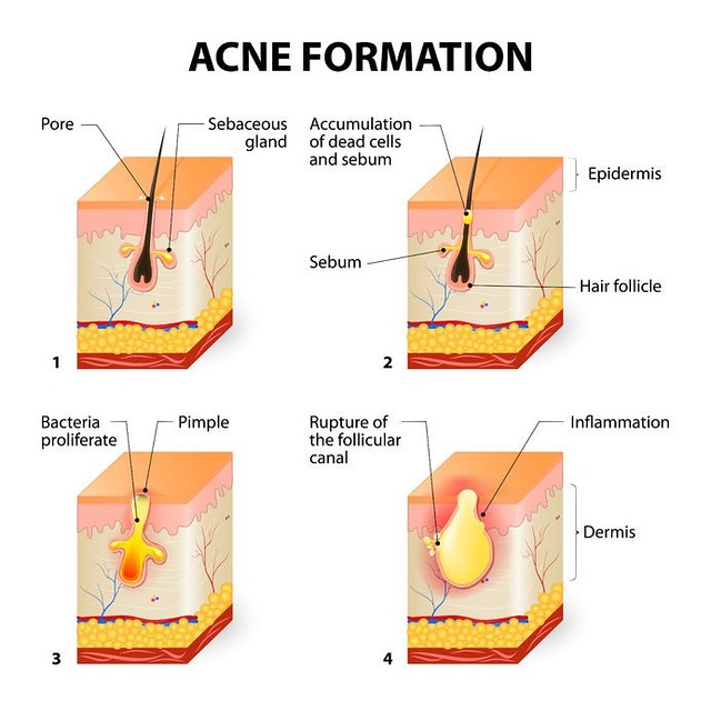 hormonal acne diagram fujitsu ac wiring all you need to know manage 2