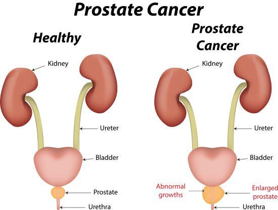 Obat Prostat Yang Dijual Di Apotik