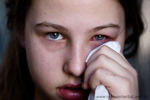 Obat Mata Berair Dan Belekan Terus Menerus Di Apotik