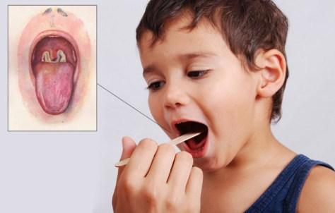 Solusi Untuk Mengobati Penyakit Difteri Paling Ampuh