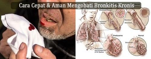 Obat Antibiotik Untuk Bronkitis Kronis di apotik