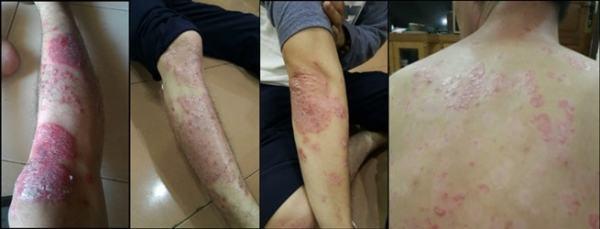 bukti keampuhan QnC Jelly Gamat atasi psoriasis