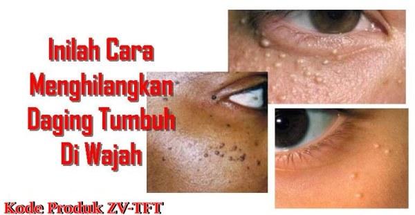 Obat Penghilang Skin Tag Di Apotik