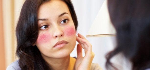 Obat Iritasi Kulit Wajah Karena Kosmetik