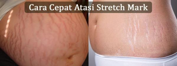 Cream Stretch Mark Untuk Ibu Hamil