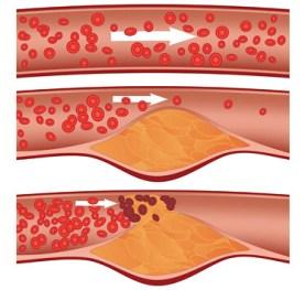 Cara Cepat Turunkan Kolesterol Tinggi Dengan Alami