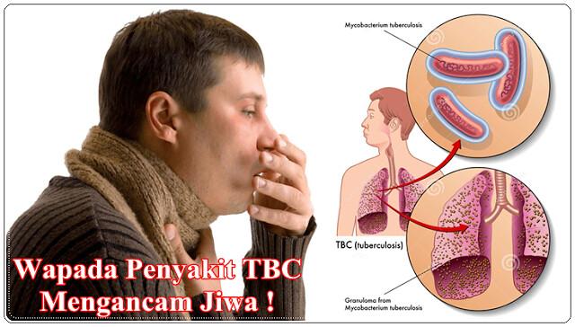 Obat Herbal TB Paru Aktif