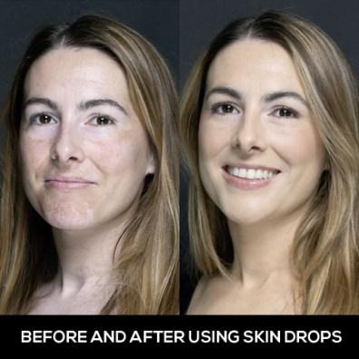Cara Menyamarkan Vitiligo Di Wajah Dengan Make Up