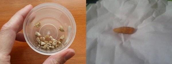 Calcusol Obat Penghancur Batu Ginjal