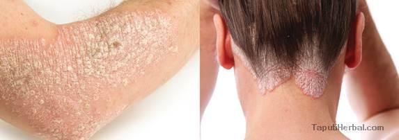 kulit kering karena psoriasis