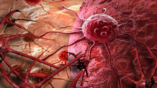 Penyakit Kanker - Penyebab, Gejala, dan Bahayanya