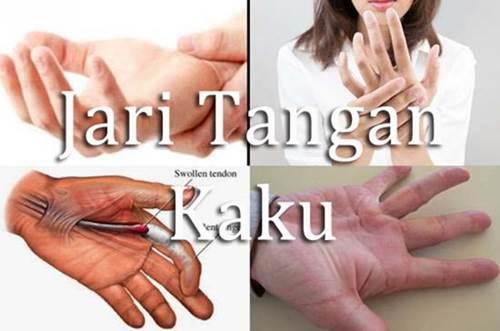 Obat Alami Atasi Jari Tangan Kaku