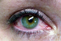 green teary eye