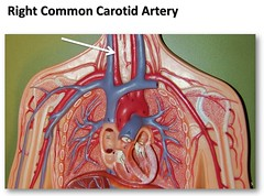 Right common carotid artery - The Anatomy of t...