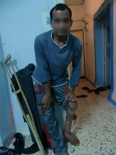 Wael Wants to Save His Leg