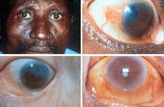 Leprosy. Massive bacillary infiltration: ocula...