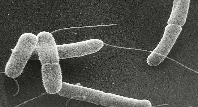 Escherichia coli (bactéria E. coli) vista sob o microscópio eletrônico