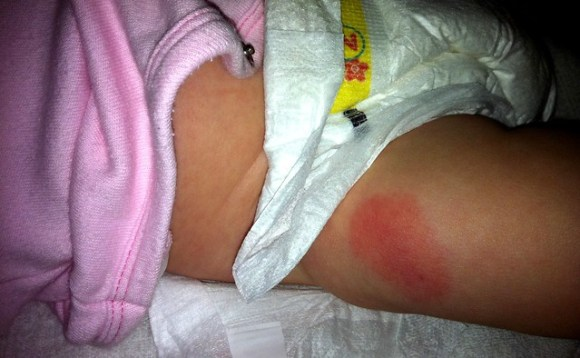Faith's thigh after an injection