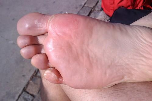Mi dolorido pie