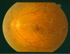 Illustration 35 Example Retinal