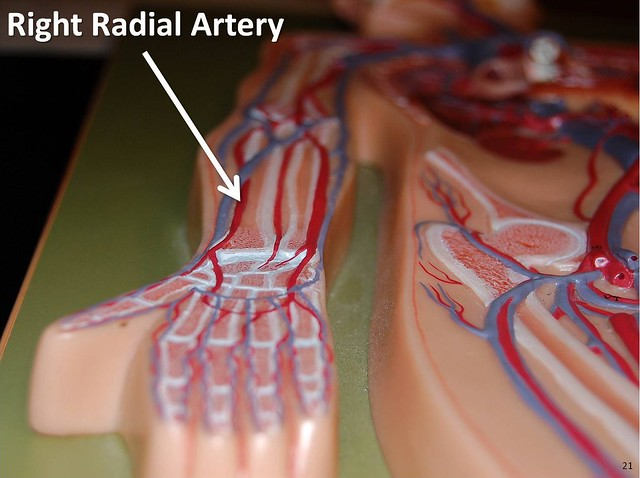 Right Radial Artery The Anatomy Of The Arteries Visual