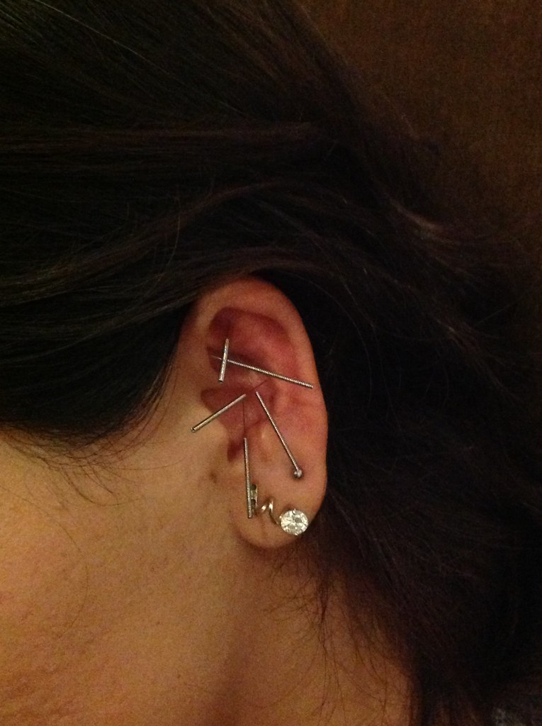 Wellness sanctuary ear acupuncture for detoxification