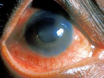 International Centre for Eye Health - Acute anterior uveitis
