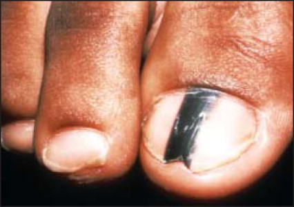 Bruise Under the Big Toenail Treatment