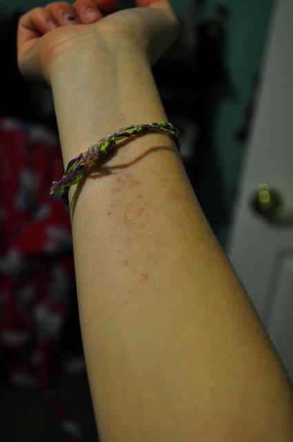 43365 weird rash from volleyball  Flickr  Photo Sharing