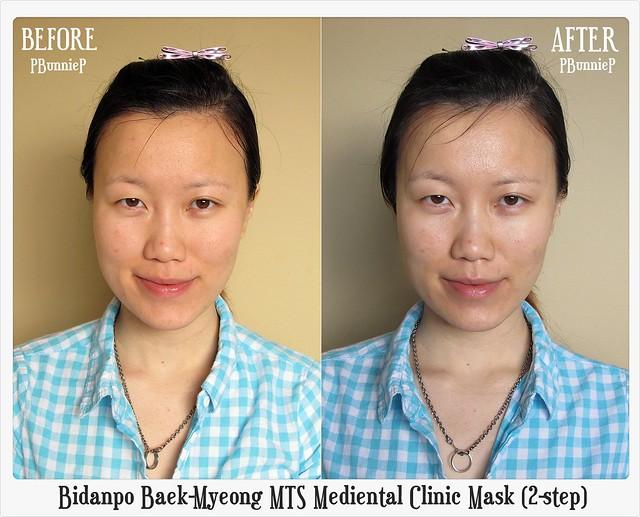 Bidanpo Baek-Myeong MTS Mediental Mask_02