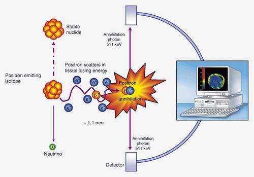 positron_emmision_tomography