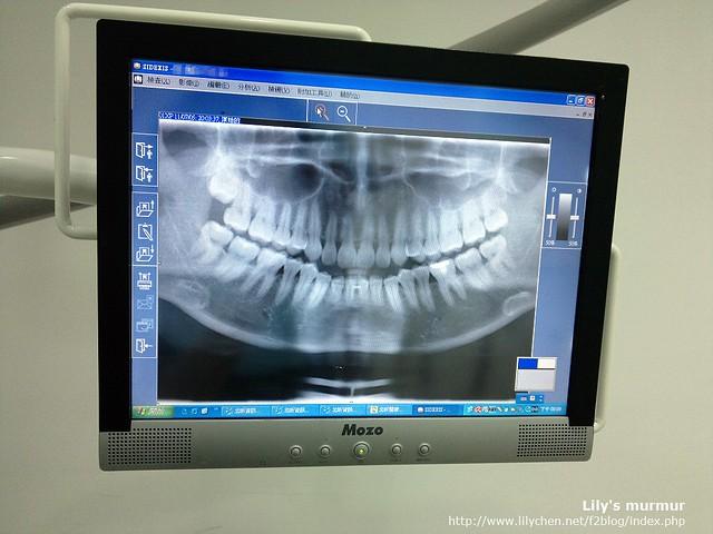 這是我牙齒的X光片,除了左上方那個智齒卡住長到一半沒空間長了以外,其他都長了,而且長得還OK。