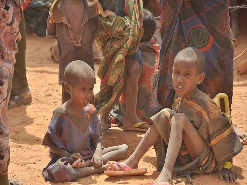 Malnourished children, weakened by hunger