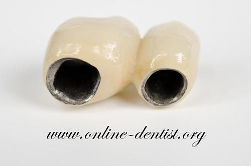 先介紹第一類的傳統假牙套(牙冠),因為外層都是一樣的陶瓷,所以主要價格費用差距是在內層的金屬,細分成 ...
