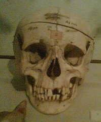 Brugmans Skull