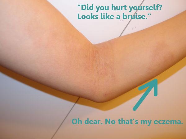 eczema arm