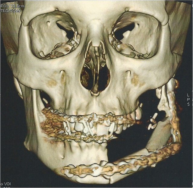 3D reconstruction 15 August 2011.jpg