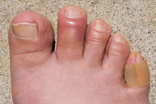 5903154733 3d2155bf3c z Swollen Painful Toe