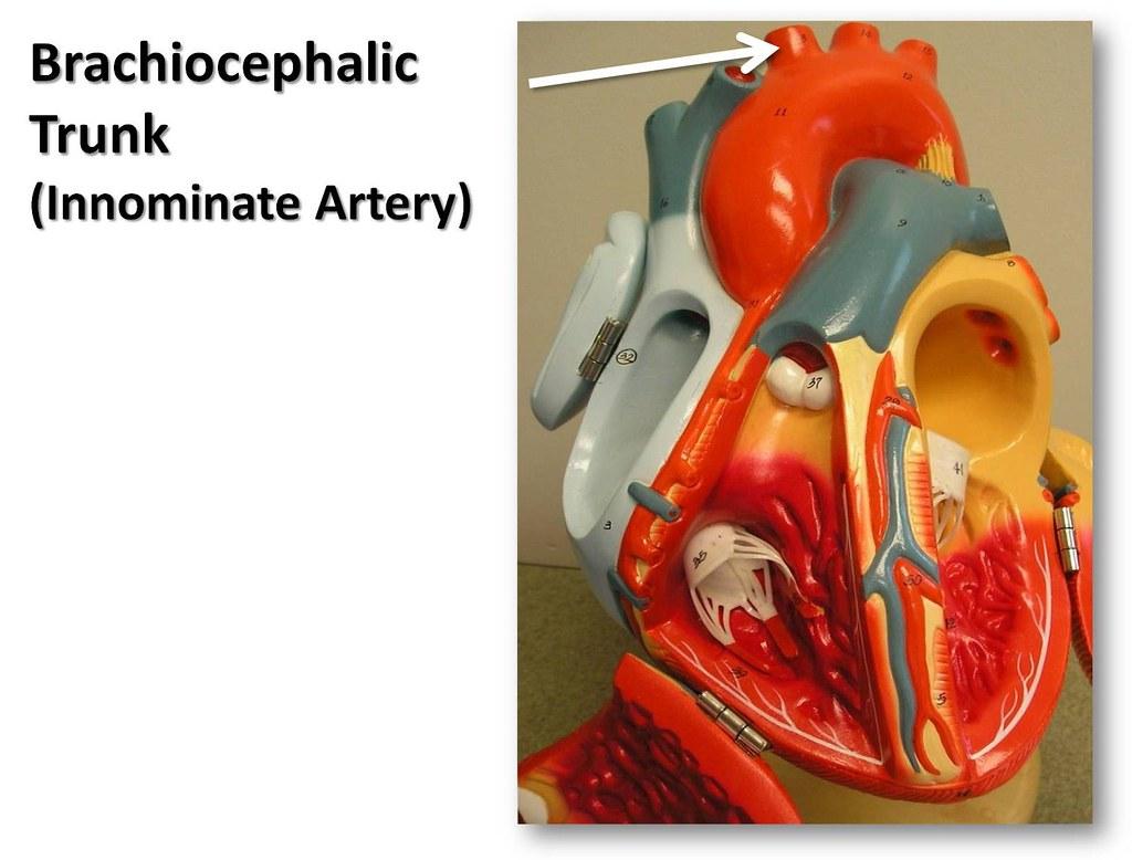 Brachiocephalic Trunk Anterior View