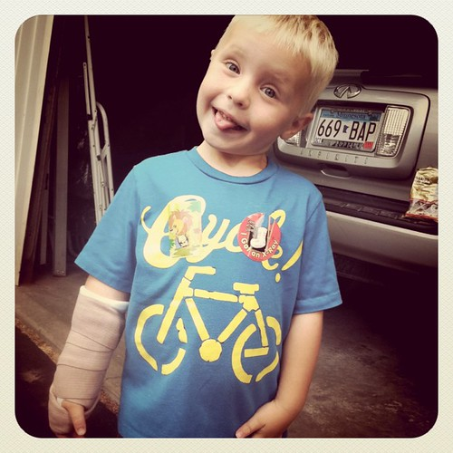 Poor Morgie.  Fell last night and broke wrist 2 days before vacation.  He's a trooper and doing just fine.
