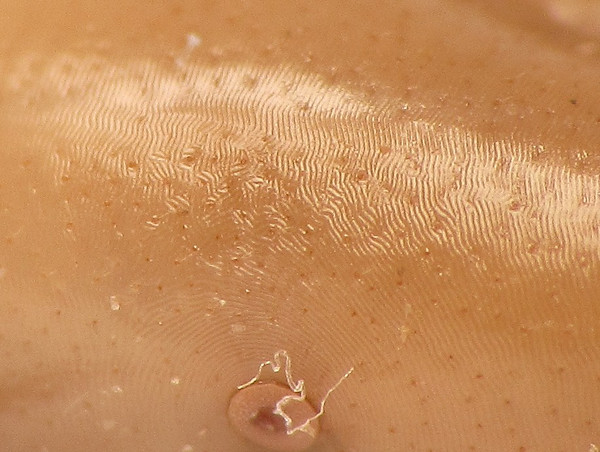 Microsculpture of spiracle and side on Ixodes scapularis, the Deer tick