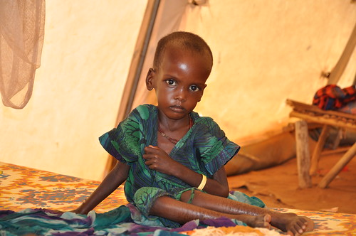 A malnourished child in an MSF treatment tent in Dolo Ado, Ethiopia