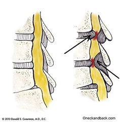 Stenosis of the Spine | Illustration of Spinal...