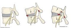 Degenerative Disc Disease | Image of Foramen i...