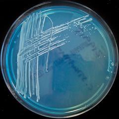 Corynebacterium striatum on C.L.E.D. agar