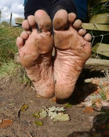 World' Of Callouses And Soles
