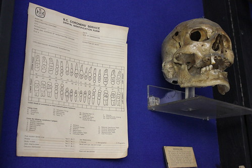 Dental Identification and skull